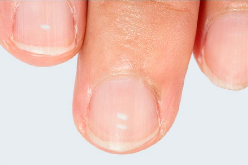 Белые пятна на ногтях - признак стресса
